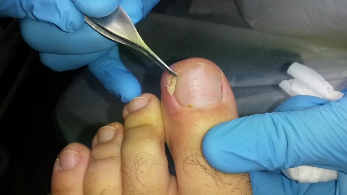unghie incarnata