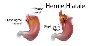 hernie-hiatala