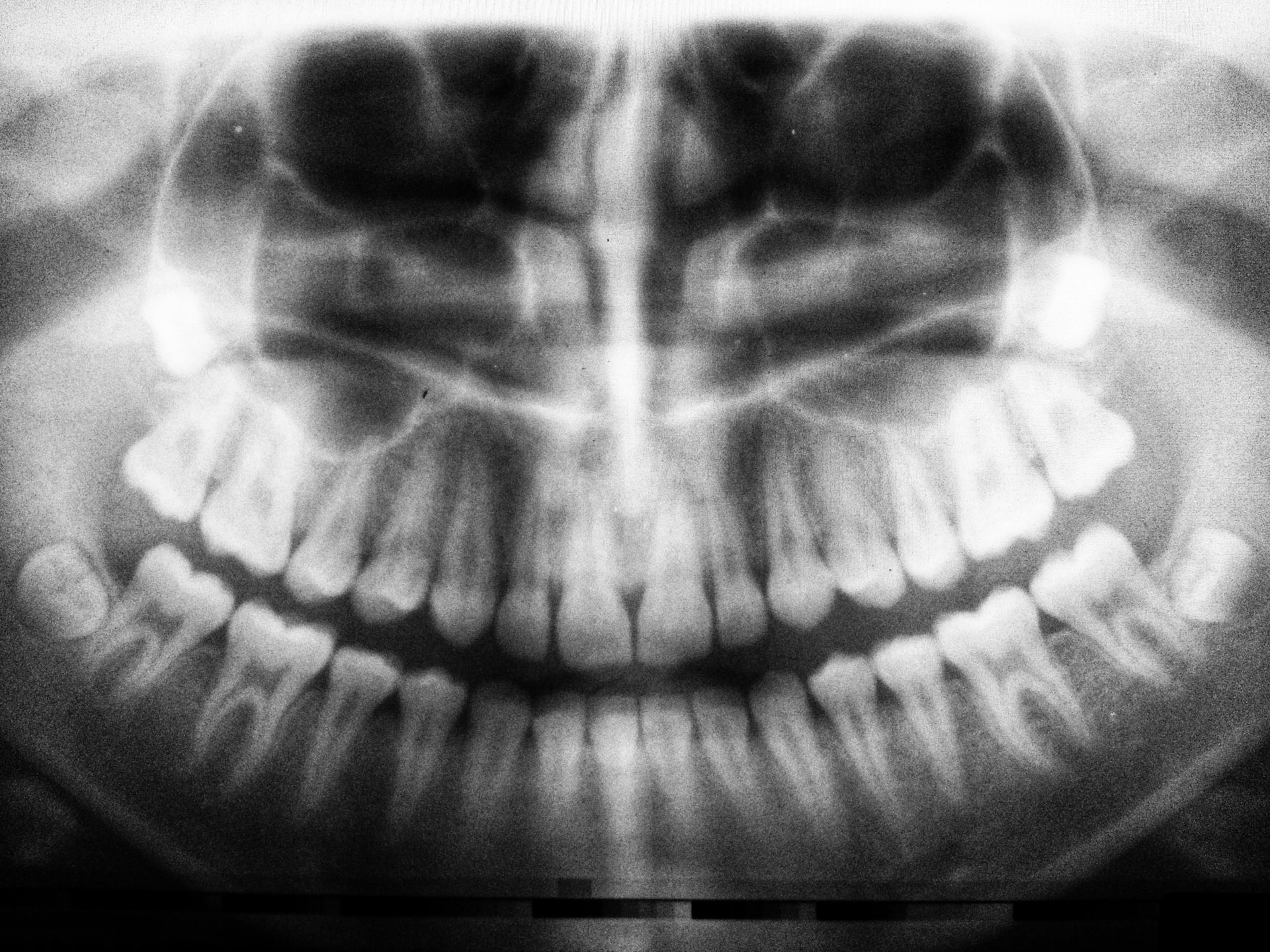 Cum se salvează un dinte bolnav opțiuni de tratament